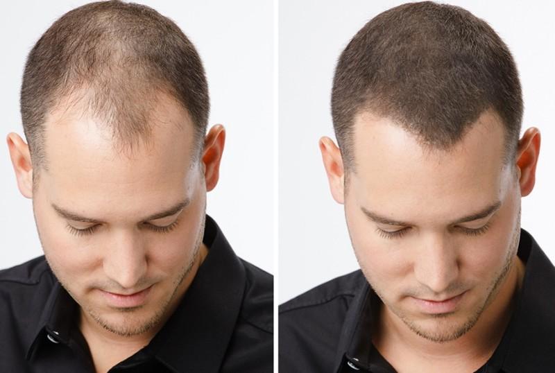 HairLoss-Blocker-queda-de-cabelo
