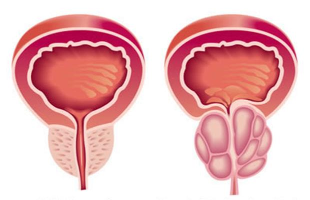 Embolização da próstata